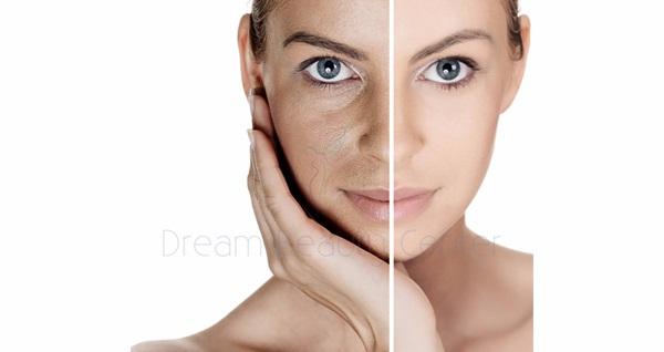Dream Beauty'de profesyonel eller ile 1 saat süren cilt bakım uygulamaları 19,90 TL'den başlayan fiyatlarla! Fırsatın geçerlilik tarihi için DETAYLAR bölümünü inceleyiniz.