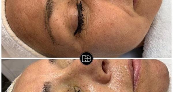 Dilay Şahin Cosmetics'de BB Meso Shine (Leke Bakımı) 3 seans 1300 TL yerine 750 TL! Fırsatın geçerlilik tarihi için DETAYLAR bölümünü inceleyiniz.