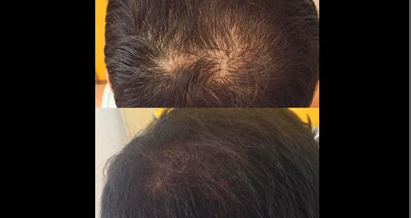 Eren Salih Kalıcı Makyaj ve Güzellik'te saç simülasyonu 1750 TL yerine 1250 TL! Fırsatın geçerlilik tarihi için DETAYLAR bölümünü inceleyiniz.