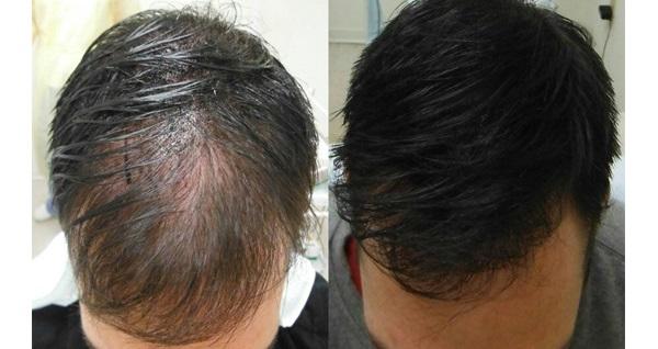 Nişantaşı Hair Feel Studio'da kaş kontür tasarımı, kirpik lifting, kalıcı makyaj, saç simülasyonu işlemleri 40 TL'den başlayan fiyatlarla! Fırsatın geçerlilik tarihi için DETAYLAR bölümünü inceleyiniz.